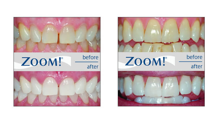 One-Hour ZOOM! Whitening